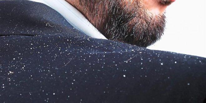 همه چیز درباره شوره سر در مردان + روشهای کنترل و درمان