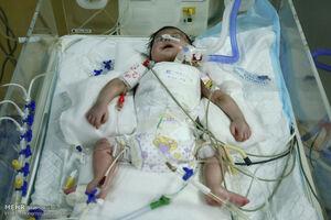 تولد نوزاد قمی با توده ۳۰ کیلوگرمی